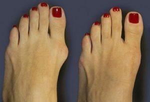 Vbočený palec na noze